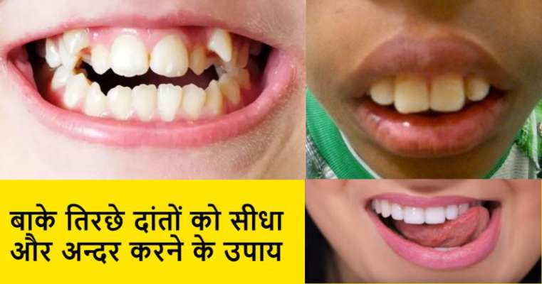 Image result for क्या आपके दांत टेढ़े मेढ़े है,